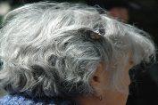 Saç Beyazlamasının Nedenleri